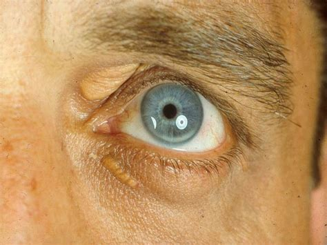 what is le cerbvas disease picture 14