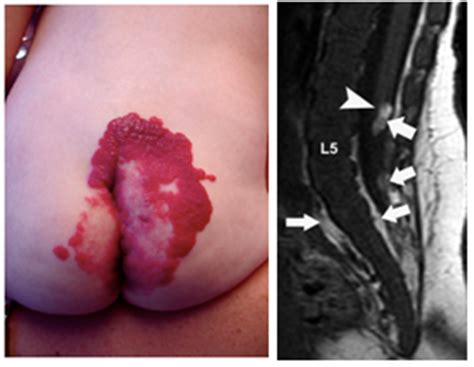 what is a liver hemangioma picture 14