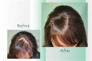 hairpieces for women with thinning hair picture 2