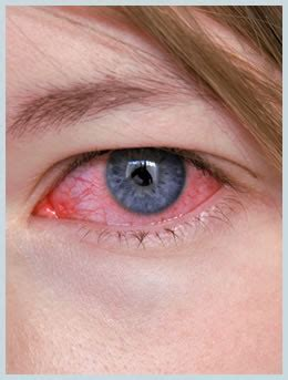 bacterial conjunctivitis picture 17