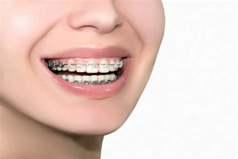 colored braces teeth picture 10