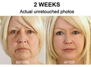 before and after pictures of using aging creams picture 9