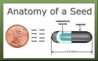 Radioactive seeds prostate cancer picture 2