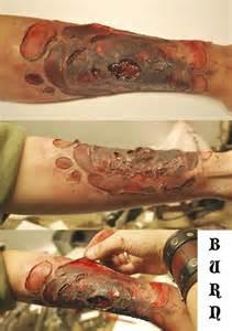 skin burns picture 6