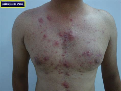 what is acne inflammation picture 7