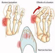 foot problems sore toe joint picture 5