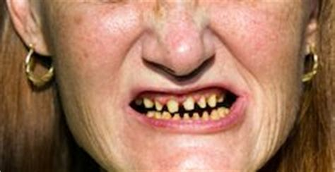 acid reflux in infants teeth picture 9