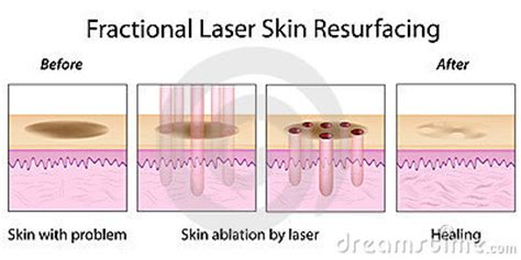 fractal skin procedure picture 1