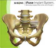centers specializing in sacroiliac joint pain picture 13