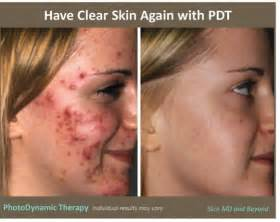 ala acne treatment photodynamic picture 3