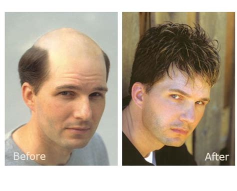 hair replacement picture 6