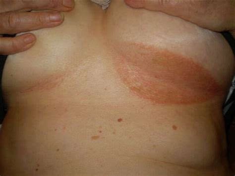 yeast infections in breasts picture 6