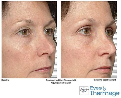 consumers acne scars thermage picture 9