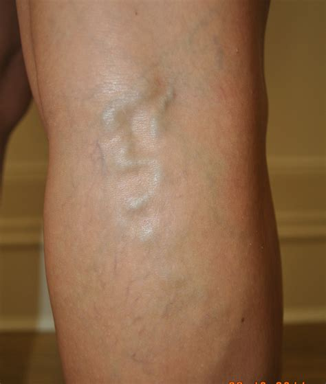 dark spot along vein on penis picture 9