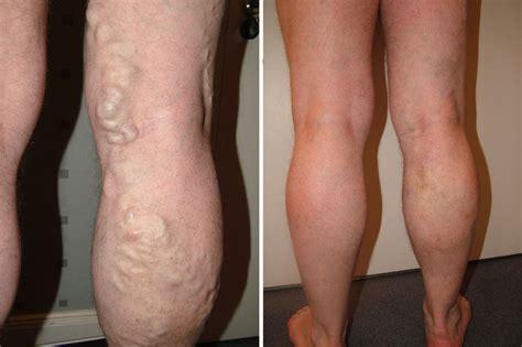 home cure cellulite picture 15