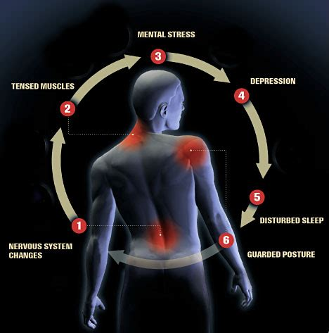 arthritic pain relief picture 6