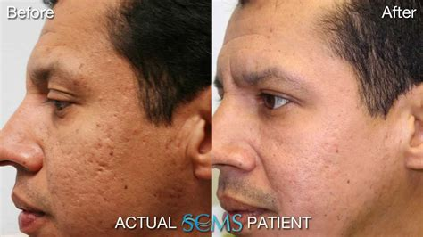 microdermabrasion for acne scars picture 9