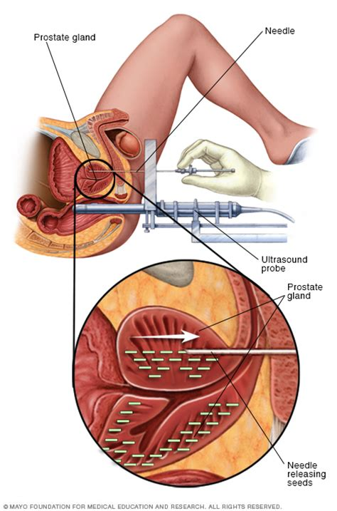 How do doctors operate for prostate cancer picture 7