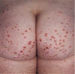 a a karr md acne statin picture 12