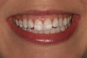 front teeth picture 14