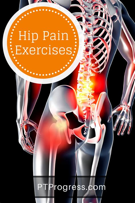 arthritis joint pain picture 3
