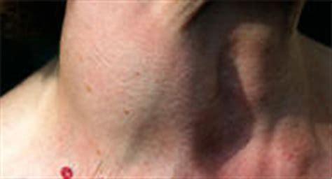 blood flow in thyroid nodule picture 14