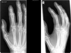 injury proximal phalanges metacarpal phalangeal joint picture 8