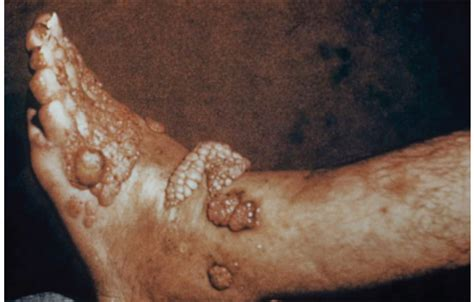 what is nail fungus picture 11
