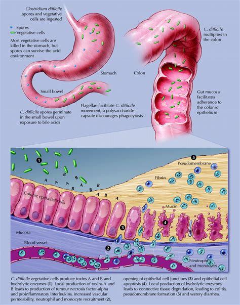 cdiff colon bacteria picture 1