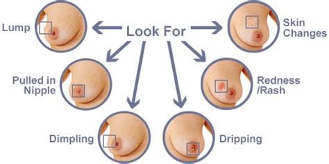 areola changes in skin both breast picture 9