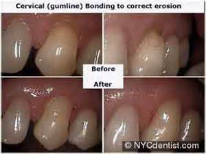 teeth whitening & cervical erosion picture 1