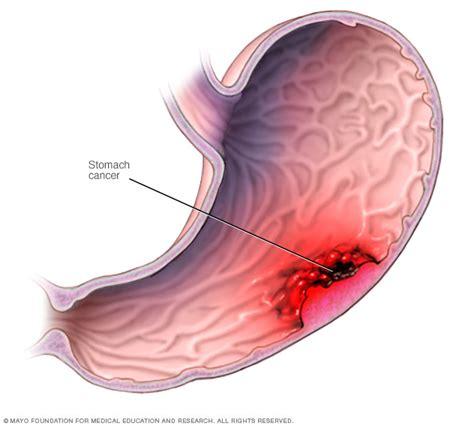 intestinal lymphoma picture 15