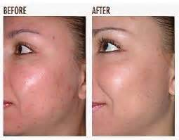 danger of fraxel skin treatment picture 1