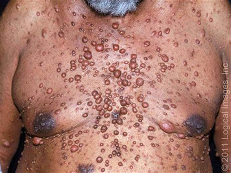 large cysts all over body picture 1
