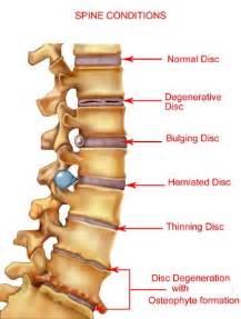 degenerative muscle diseases picture 11