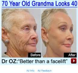 face lift cream by dr. oz & ellen picture 12