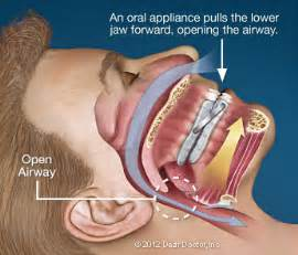dental appliance for nighttime teeth gritting picture 6
