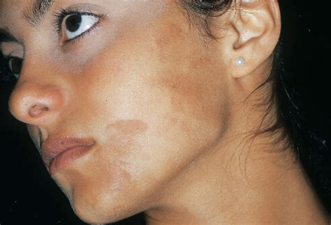 skin pigmentation problems picture 5