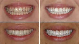 los angeles tooth whitening picture 5