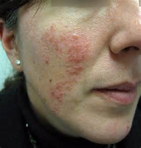 cheek redness because of acne picture 6
