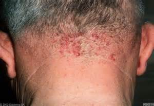 folliculitis home remedy picture 10