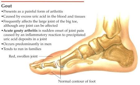 diet coke & joint pain picture 9