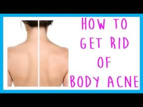 how to get rid of back acne picture 3