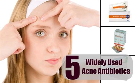 sing the right antibiotic acne picture 2