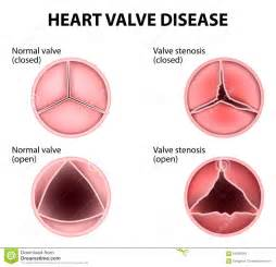 erectile dysfunction and aortic heart valve picture 5