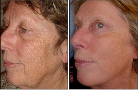 pictures of fraxel laser before and after for picture 1
