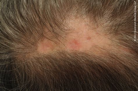 mrsa hair loss boils on scalp picture 5