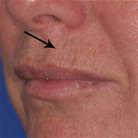 upper lip creases picture 13