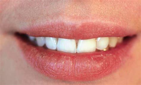 Painful swollen lip picture 10