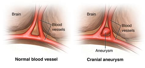 aneurysm high blood pressure picture 7